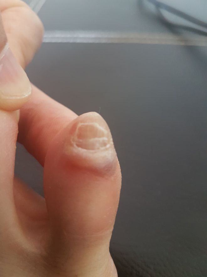messed up toenail